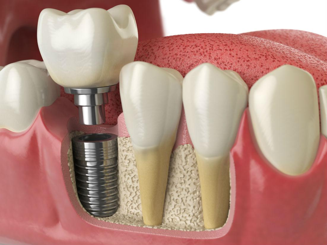 Dental Implants Falls Church VA