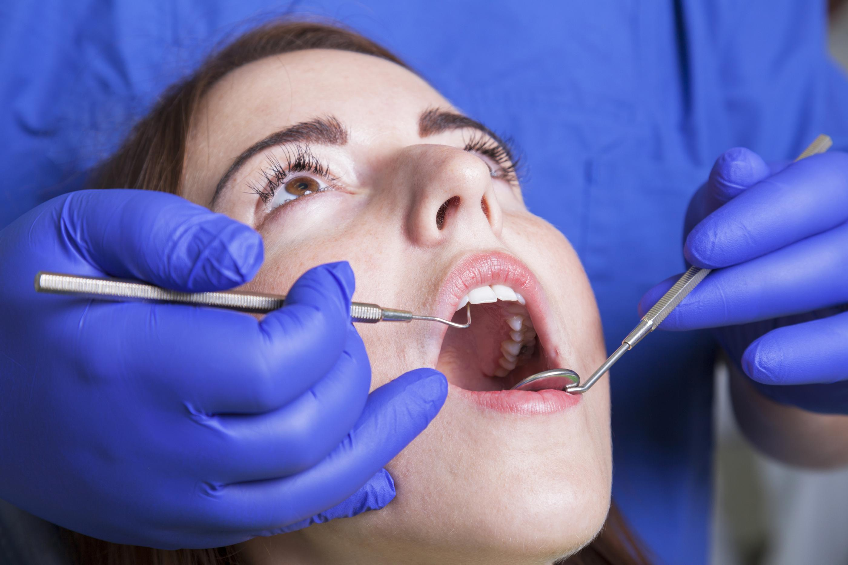 Gum Disease Falls Church VA